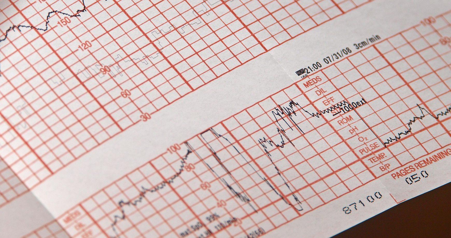 Nemocnica v Minnesote varuje pacientov pred možným únikom lekárskych záznamov